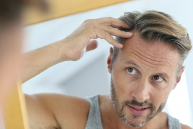 Hair loss: why it happens and how to deal with it